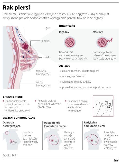 Rak piersi (Maria Samczuk/PAP)
